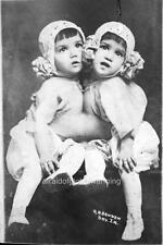 Photo 1910s Circus Freak Sideshow Cuban Siamese Twins
