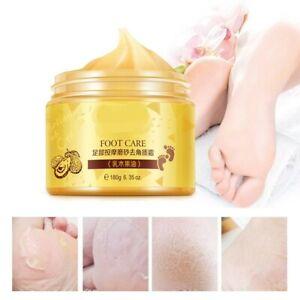 Foot Cream Shea Butter Moisturizing Softening Cream Foot Care Exfoliating Scrub