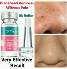 Painless Treatment For Blackhead Whitehead  Pimple Acne Blemish Comedone Spots