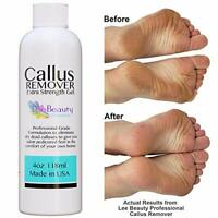 Best Callus Remover, Callus Eliminator, Liquid & Gel For Corn And Callus On