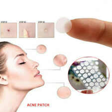 72pcs Skin Tag & Acne Patch - 2019 NEW Hydrocolloid Acne and Skin Tag Remover