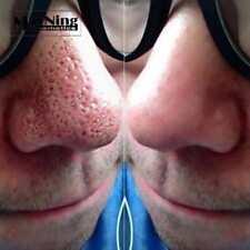 Blackhead Remover 50pcs Nose Stripes to Remove Acne Nose Black Heads Deep Cleani