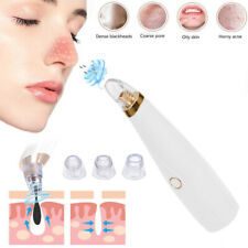 Girls Electric Blackhead Remover Lady Skin Care Face Pore Suction Cleaner Tool
