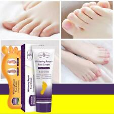 Heel Care Therapy Foot Massage Repair Cream Cracked HEELS Disappear Treatment