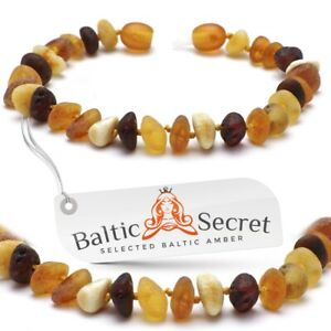 Baltic Amber Anklet Bracelet Polished Cognac Cherry Raw Beads Necklace Necklaces