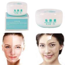 "1Pcs Face Skin Care Facial Lightening Cream Remove Freckle Dark Spots Whitening"""