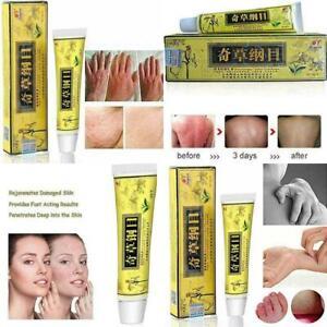 Psoriasis Tratamientos Para Dermatitis Crema para Piel Seca Eczema Vitiligo Acne