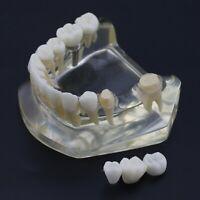 Dental Implant Lower Jaw Typodont Teeth Study Model with 3 Unit Bridge Demo 2010