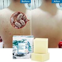 Natürliche Ziegenmilch Seife Riegel Akne Behandlung Meersalz Seife Gesicht 100g