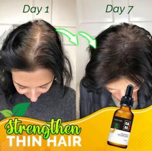 10X-Regro Strong Hair Serum  Rapid Growth Hair Treatment 30ml NZ
