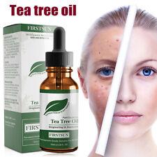 Unisex Tea Tree Essential Oil Shrink Pores Acne Removal Oil Control Facial Care