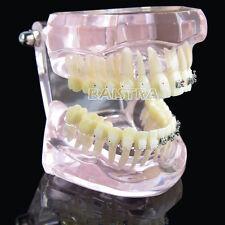 1X Dental Study Model Transparent Gum Metal Ceramic Brackets Standard 3003 Italy
