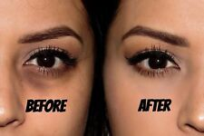 Under Eye Cream - Reduces Dark Circles by 80% For 4 Weeks with hyaluron -15ml