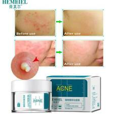 HEMEIEL Acne Treatment Face Anti Acne Scar Removal Pimple Blackhead L