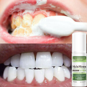 60ML Teeth Whitening Cleaning Baking Soda Mousse Foam Toothpaste Oral Care