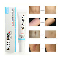 Nuobisong - Face Treatment Care Acne Scar Removal Cream Blemish Stretch Marks