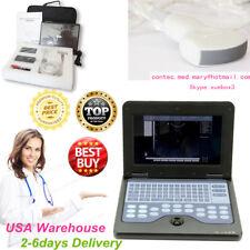 B-Ultrasound Machine Systems,Smart Laptop Ultrasound Scaner+Convex Probe,USA HOT