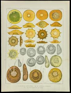 1879 - Platte Medizin Amöbe - Arcella Artocrea / Arcella Dentata - Leidy