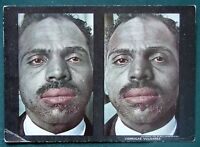 Verrucae Vulgares - Facial Warts - orig 1910 Medical Stereoview