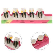 Dental Lab Periodontal Disease Assort Tooth Typodont Study Teaching Teeth Mo_ti