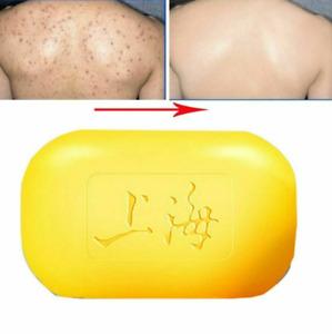 Jabon para blanquear el cuerpo elimina acne aclara la piel funciona Garantizado!