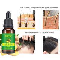 Natural Ginger Germinal Hair Growth Serum Hairdressing Oil Loss Treatement 30ml