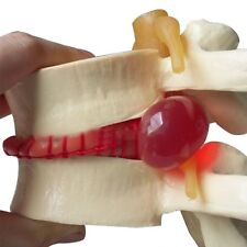 US STOCK  Medical Lumbar Spine Model Disc Herniation demonstration teach model