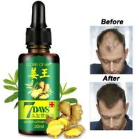 7 Day Regrow Ginger Germinal Hair Growth Serum Hairdressing Oil Loss Treatment