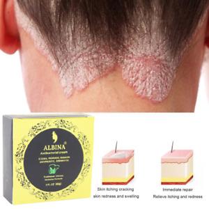 🇬🇧UK Chinese Herbal Antibacterial Cream Itchy Skin Allergies Relief - 60g