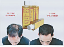 NOVA GOLD HAIR RESTORER FOR GROWTH, STRENGTH, THICKENING & DETOX. NEW PRODUCT