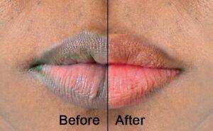 Pink Fresh Lightening Lip Cream Treatment to Remove Dark Lips Easy Use Unisex