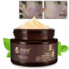 Acne Treatment Cream Whitening Anti Pimple Spot Acne Scars Blackhead Removal