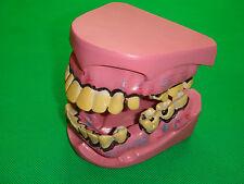 Smokers oral teeth long saw teeth listed disease demo model