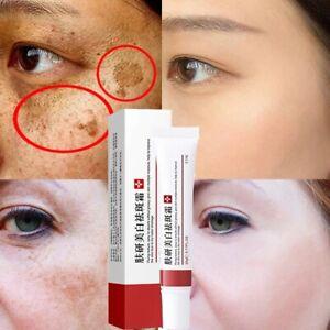 Whitening Freckle Cream Remove Skin Spot Pigment Melasma Acne Melanin Dark Spots