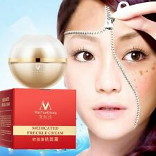 New 30ml Medicated Freckle Pigment Face Whitening Cream Chloasma Cyasma Removal