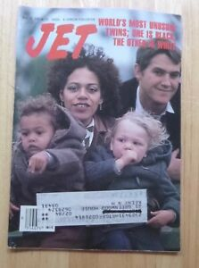 JET Magazine December 12, 1983 World's Most Unusual Twins; 1 is Black 1 is White