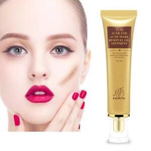 Mark Removal Cream Acne Scar Skin Repair Acne Spots Treatment Face Care Gel I0O9