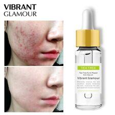 Tea Tree Repair Face Serum Acne Scar Shrink Pores Face Oil Control Essence