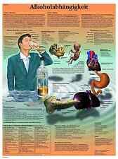 Alkoholabhängigkeit Lehrtafel  Anatomie 50 x 67cm Poster