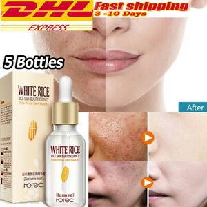 5 x HOREC White Rice Whitening Serum Moisturizing Cream Anti Aging Wrinkles Skin