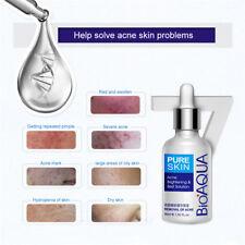 Removal Acne Scar Marks Essence Cream Treatment Dark Spot Face Care Whitening