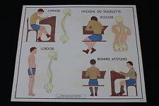 V232 Affiche scolaire papier Rossignol 12 Cyphose Scoliose Lordose 14 Muscles