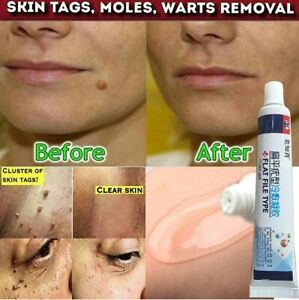 12 hours Wart Removal of Warts Liquid From Skin Tags Removing Against Moles Anti