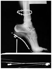 HELMUT NEWTON SHOES radiography 8x11 Photo reprint EROTIC BUY 2, GET 1 FREE