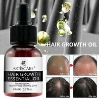 20ml Hair Essential Growth Oil Loss Serum Liquid Fast Regrowth Treatment Care