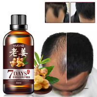 Fast Hair Growth Dense Regrowth Old Ginger Serum Oil Anti Loss Treatment Essence