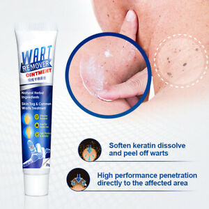 Wart Mole Removal Cream Antibacterial Skin Tag Remover Skin Treatment Ointment