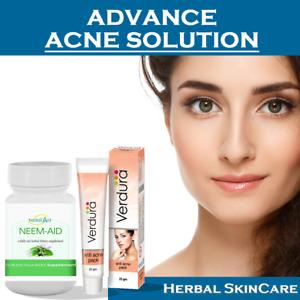 Advance Acne Skin Cream Neem Caps 500mg Acne Cream Remove Pimple Scar Blackhead