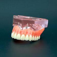 Dental Study Model Overdenture Superior with 4 Implants Demo Model #6001 01 Pink