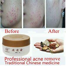 Laozhongyi Chinese Medicine Cream Acne Removing Oil Control Cream 15g Authentic